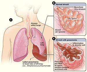 Lobar Pneumonia Wikipedia