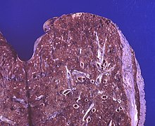 Lung - Miliary tuberculosis (6564687295).jpg