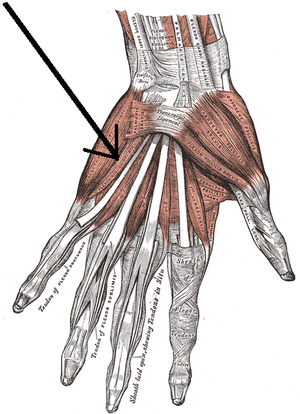 Flexor digiti minimi brevis muscle (hand) - The muscles of the left hand. Palmar surface