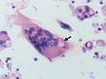 North American blastomycosis (5279534691).jpg