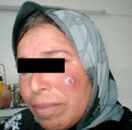 Parasite130072-fig4 Infiltrated lesion of the face due to Leishmania infantum.tif