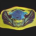Pelvic MRI 07 19.jpg
