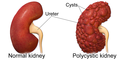 Polycystic Kidney.png