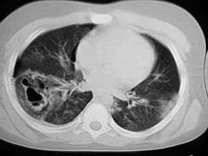 Pulmonary contusion pseudocyst CT.jpg