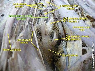 Superior gluteal artery - Image: Slide 3z