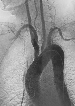 LAO angiographic of Takaysu Arteritis taken fr...