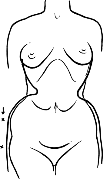 Chest developed before corset worn in a scientific sketch from 1910 Toleration of the corset1028fig7 .png
