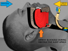 Tracheostomy with no further obstruction of airflow.png