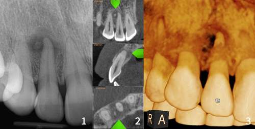 xray and CBCT scans of periapical cemental dysplasia