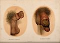 A penis with a skin disease on the glans; and a penis with a Wellcome V0010272.jpg