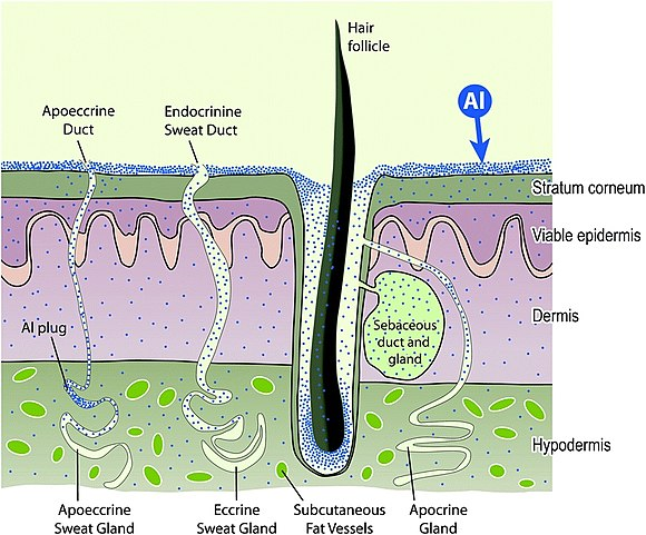 Schematic of aluminium absorption by human skin. Al absorption by skin.jpg