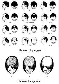 Alopecia scales