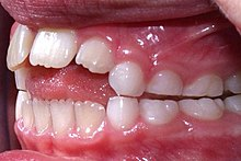 Stupendous Orthognathic Surgery Wikipedia Wiring Cloud Oideiuggs Outletorg