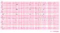 Arvd ecg2 (CardioNetworks ECGpedia).png