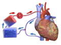 Blausen 0468 Heart-Lung Machine.png