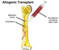 Bone Marrow Transplant.png