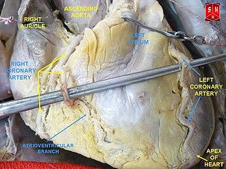 Left coronary artery - Image: Coronary arteries 1