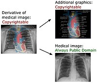 Derivative of medical imaging.jpg