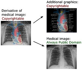 Medical imaging wikipedia in a derivative of a medical image created in the us added annotations and explanations may be copyrightable but the medical image itself remains public sciox Choice Image