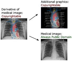 Derivative work - In U.S. law, this derivative work of a chest radiograph (which is in the Public Domain) is copyrightable because of the additional graphics. Yet the chest radiograph component of the work is still in the Public Domain.