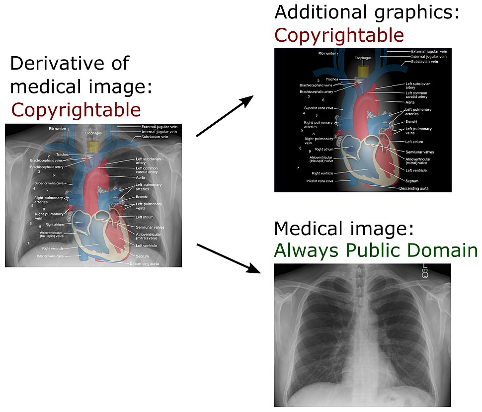 Derivative of medical imaging