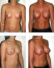 category mastektomi fjernelse af brysterne
