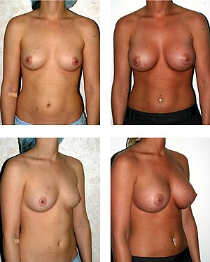 Breast implant - The pre-operative (left) and post-operative (right) aspects of a bilateral breast augmentation with high-profile, 500cc silicokne-gel implants.