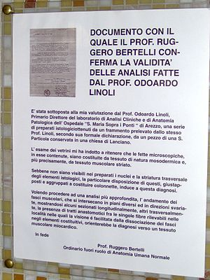 Miracle of Lanciano - Image: Eucharistic Miracle of Lanciano public documentation Ruggero Bertelli