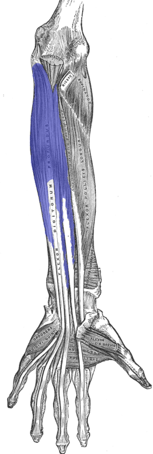 Flexor digitorum profundus muscle - Ventral view of the deep muscles of the forearm.  FDP is shown in blue.