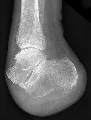 "François Chopart - X-ray of a foot after ""Chopart's amputation"""