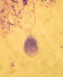 Les parasites de la partie hispide de la tête
