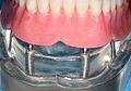 Implant overdenture model.jpg
