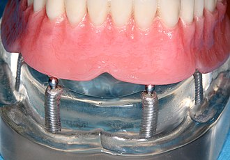Dental implant - Movement in a lower denture can be decreased by implants with ball and socket retention.