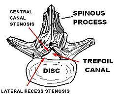 spinal stenos behandling