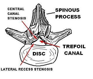 Disease of the bony spine that results in narrowing of the spinal canal