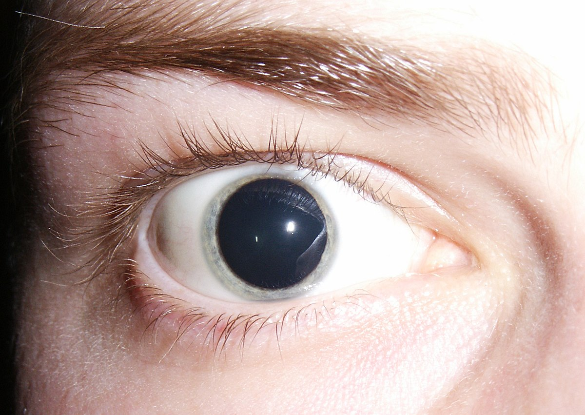 What to Expect When Your Eyes Are Dilated