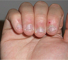 Multiple, dystrophic, irregular, shortened fingernails