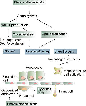 Pathogenesis of alcoholic liver disease. Inc: ...