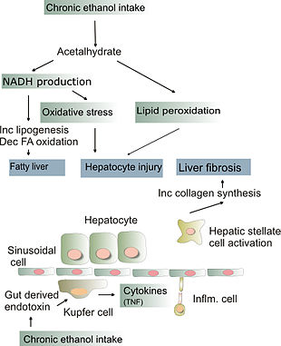 Alcoholic liver disease wikipedia pathogenesis of alcohol induced liver injury ccuart Image collections