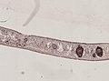 Pleioplana atomata (YPM IZ 073713) 06.jpeg