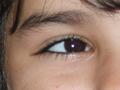 Romanian eye.png