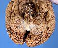 Sca6 cerebellum.jpg