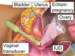 Ectopic pregnancy - Wikipedia