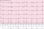 Sinus rhythm with 3-to-2 and 2-to-1 Type II A-V block.png