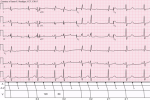 Sinus Rhythm (rate U003d 100/min) With 3:2 And 2:1 Type II A V Block; RBBB  2 1 Degree