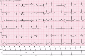 Woldemar Mobitz - Sinus rhythm (rate = 100/min) with 3:2 and 2:1 Type II A-V block; RBBB