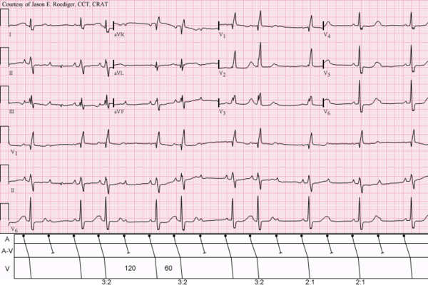Sinus Rhythm (rate U003d 100/min) With 3:2 And 2:  2 1 Degree