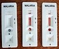 Trois kits de test de dépistage rapide positif pour le paludisme(malaria) sur table 03.jpg
