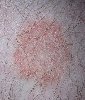Dermatophytosis fungal infection of the skin