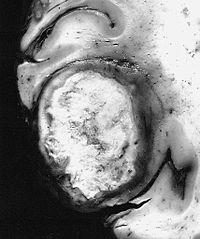AFIP-00405562-GiantCellGlioblastoma-Gross.jpg